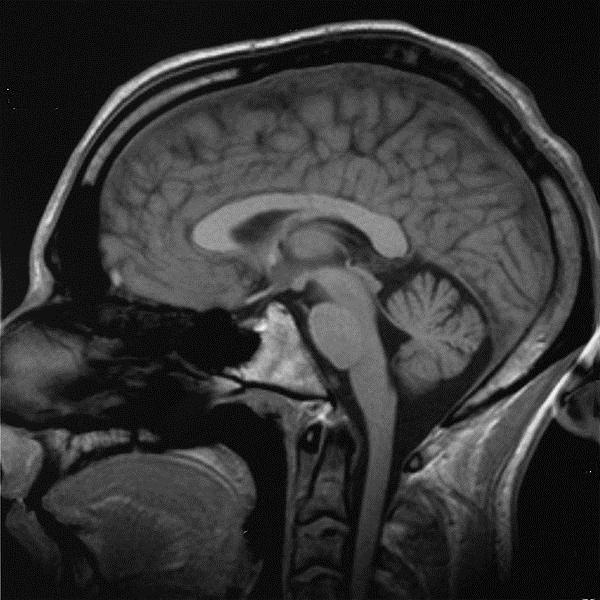 600px Brain chrischan resized 600