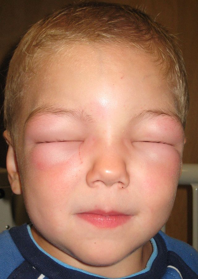 Life science researchers at the new Angioedema Center at UCSD will study causes and treatments of angioedema, which causes swelling.