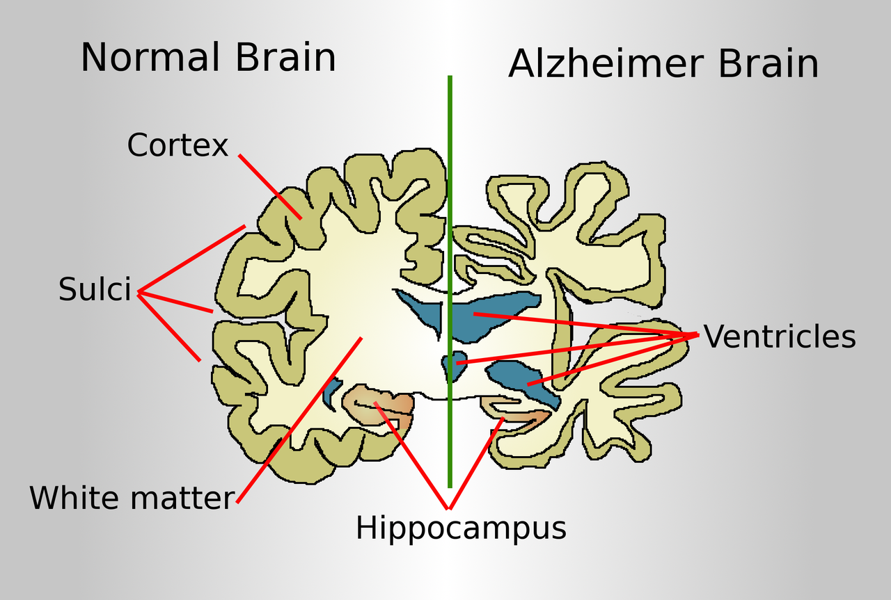 Alzheimer's is a serious disease that greatly affects the brain.