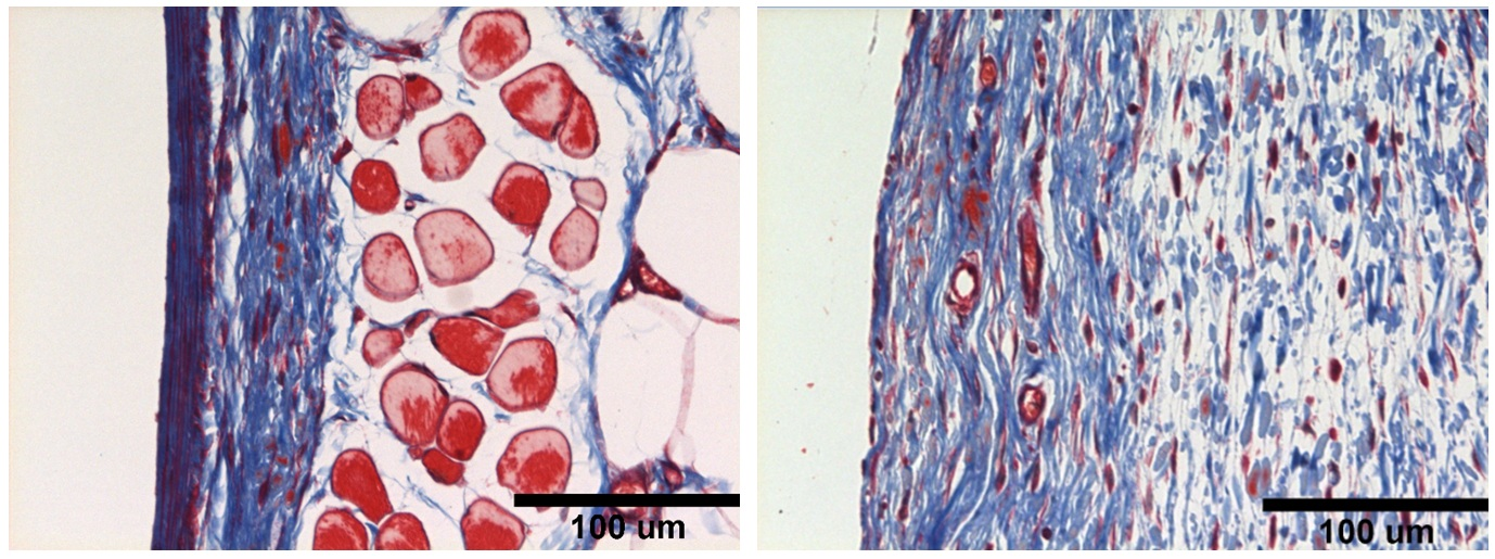 Collagen buildup UW Research