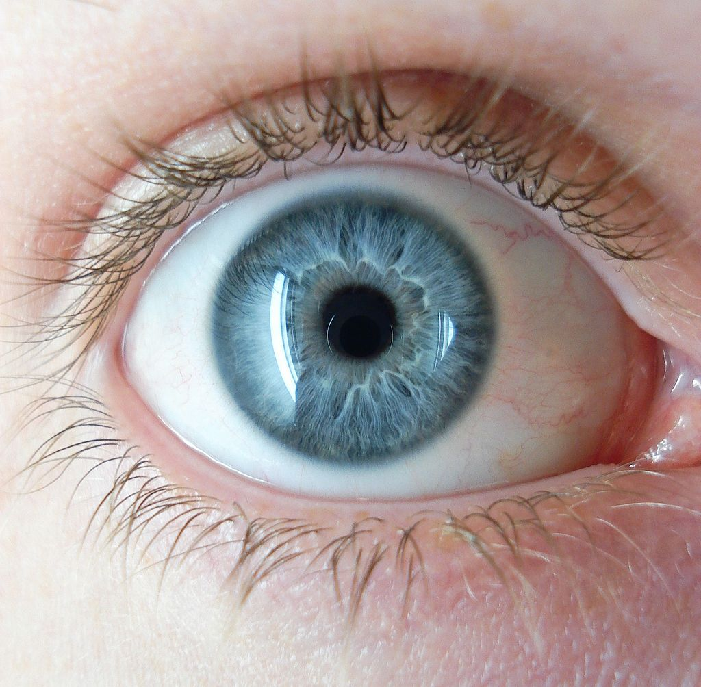 Cataracts are the most common form of vision impairment around the world.
