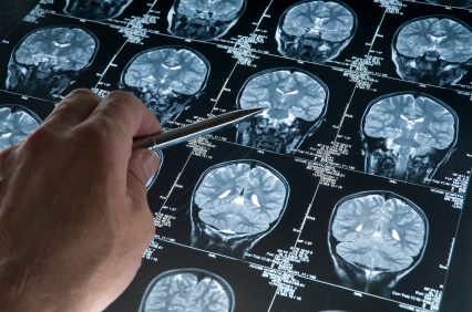 stem cell brain research