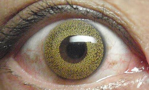 solar contact lens