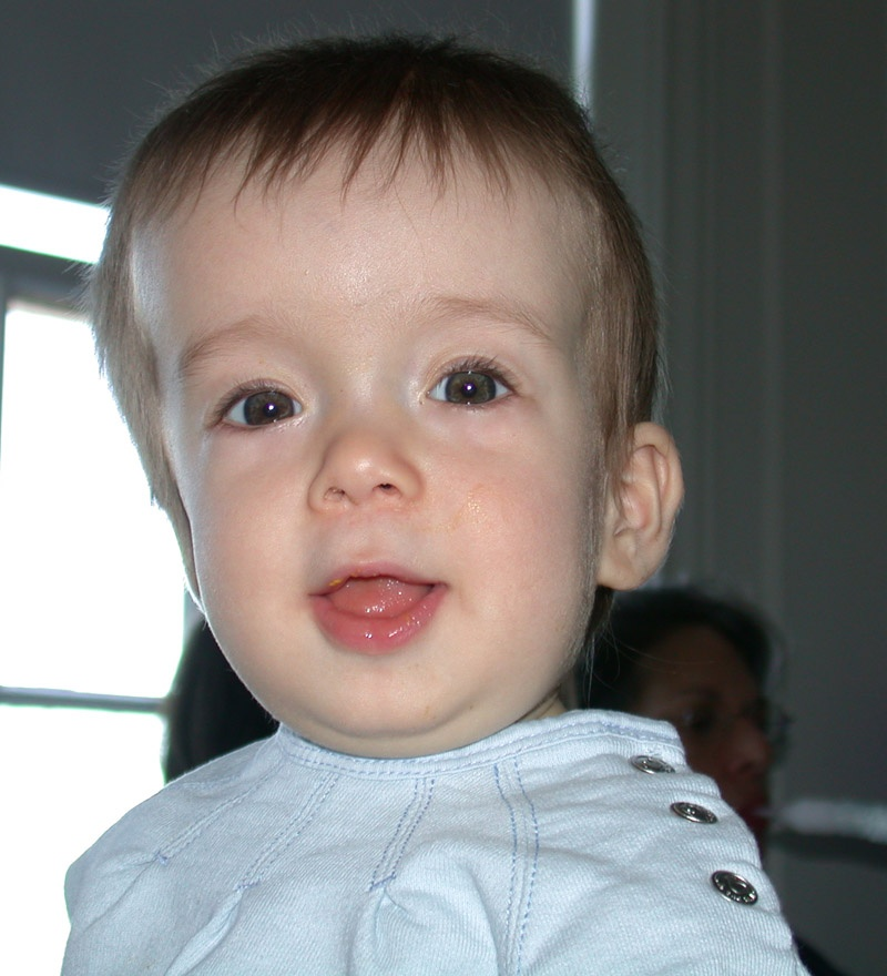 Child with cranialsynostosis. By Michael L. Kaufman at the English language Wikipedia, CC BY-SA 3.0, https://commons.wikimedia.org/w/index.php?curid=3001880