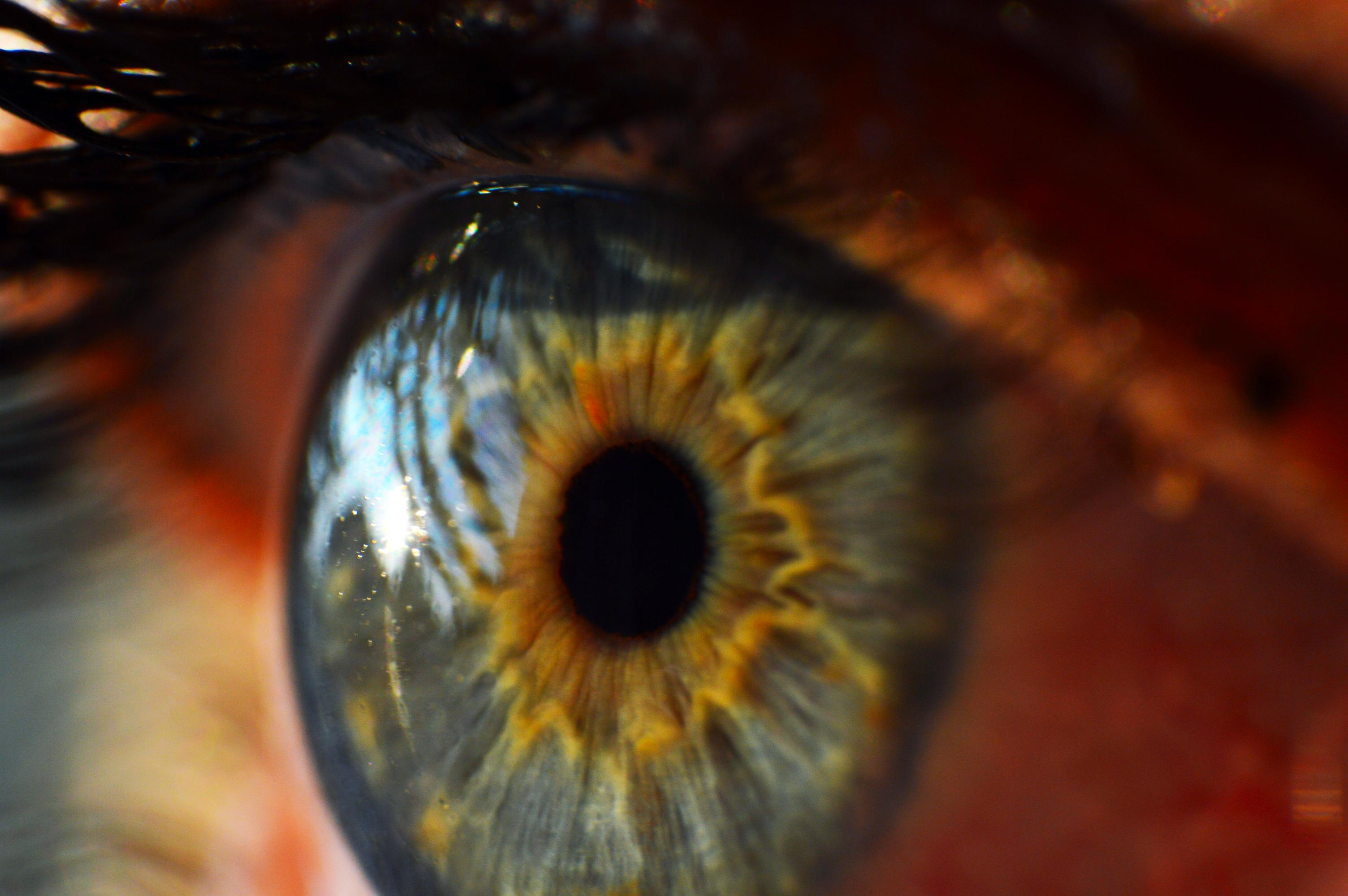 Researchers at Columbia University in New York have found that the gene ATF6 can lead to the vision disorder Achromatopsia.