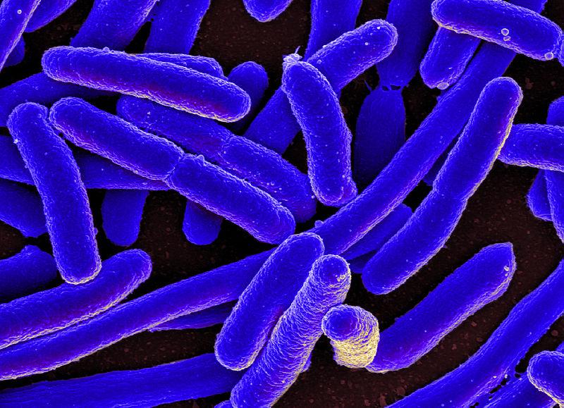 Image of E. coli via NIAID on Wikimedia Commons.