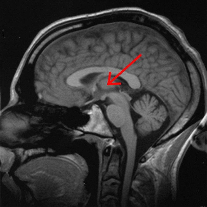 Brain_chrischan_thalamus.jpg