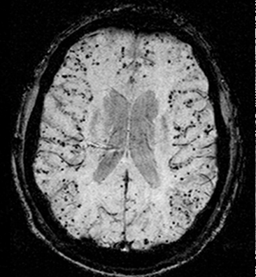 Cerebral_amyloid_angiopathy_(CAA)-MRI-1.png