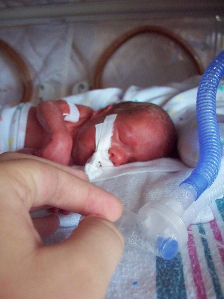 Premature_infant_with_ventilator.jpg