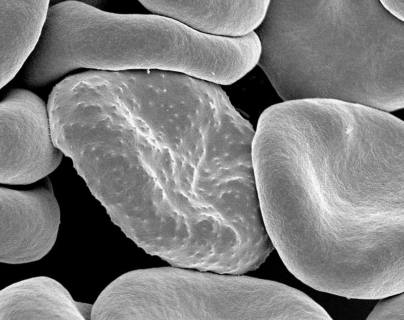 Red_blood_cells_infected_with_malaria.jpg