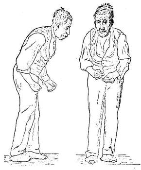Sir_William_Richard_Gowers_Parkinson_Disease_sketch_1886-2010-28-04.jpg