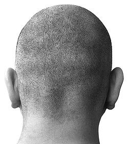 bald-head-1-1436556