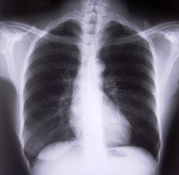 lungxray
