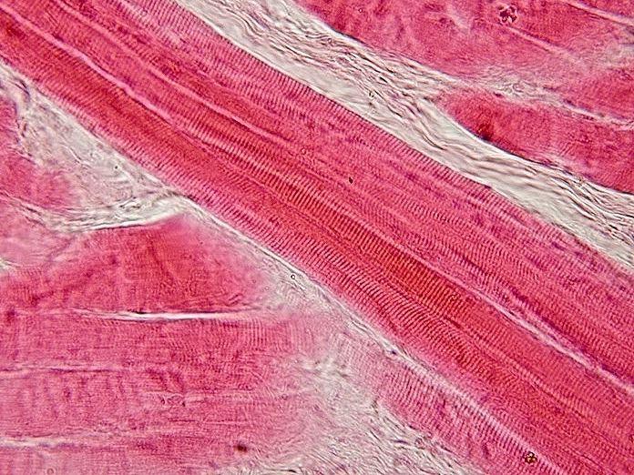 Skeletal_muscle_-_longitudinal_section.jpg